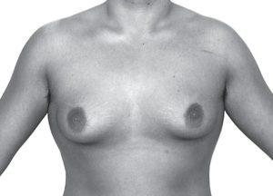 胸オペ(乳房摘出)前