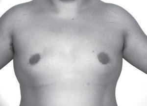 胸オペFTM手術後