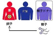 FTM精子ドナー