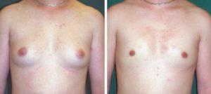 胸オペ手術前と術後の比較